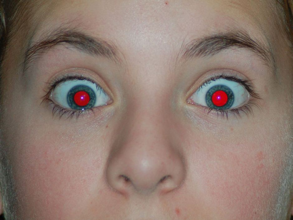 Example of red eye in a photo
